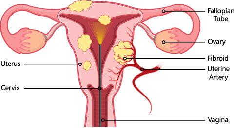 uterus fibroid